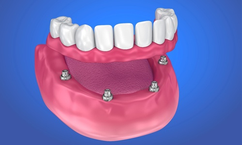 Model of implant-retained denture for lower arch.