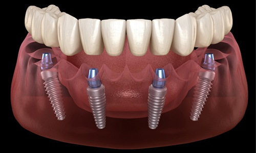 All-On-4 denture to treat complete tooth loss.