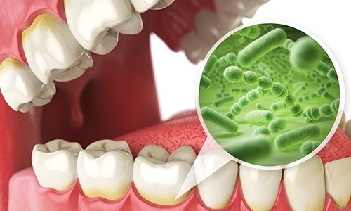 Animation of smile and bacteria