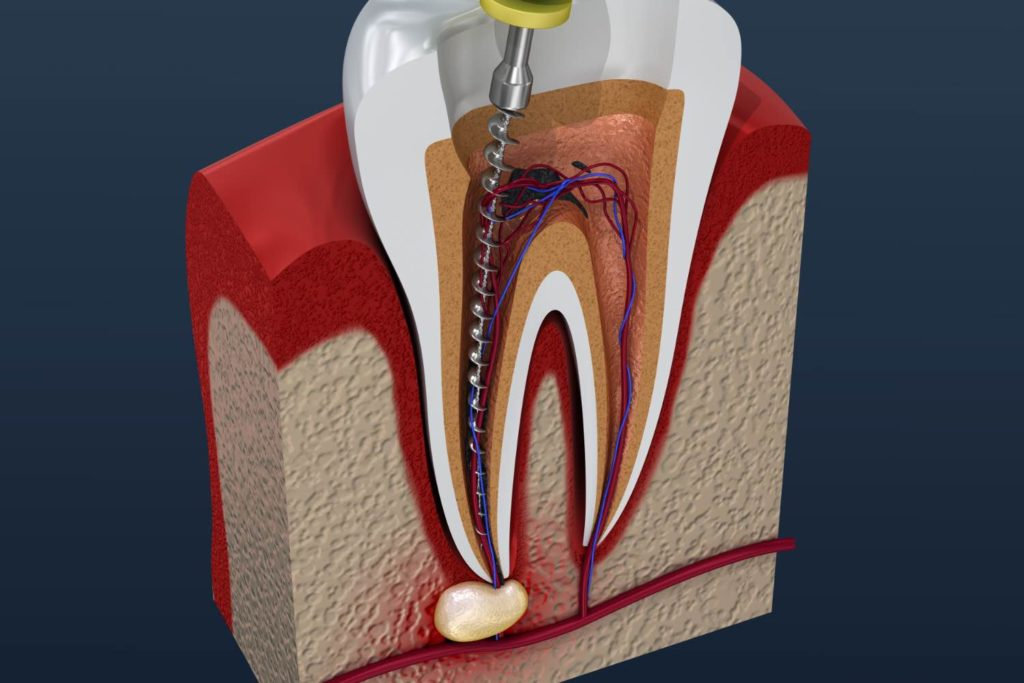 Illustration of root canal therapy