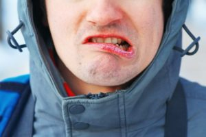 Man with winter mouth issues should see Worcester dentist